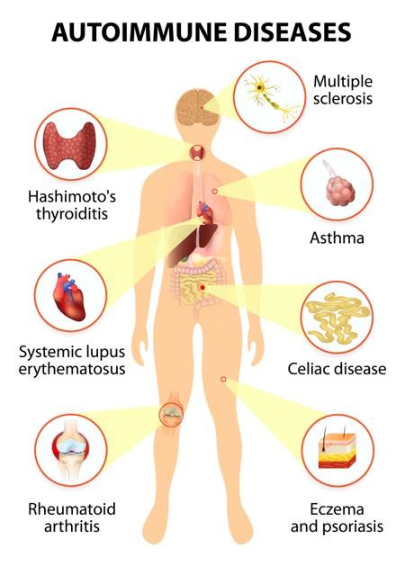 8 Dampak Negatif Gluten Bagi Tubuh