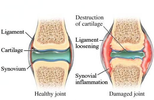 healthy vs damaged joint