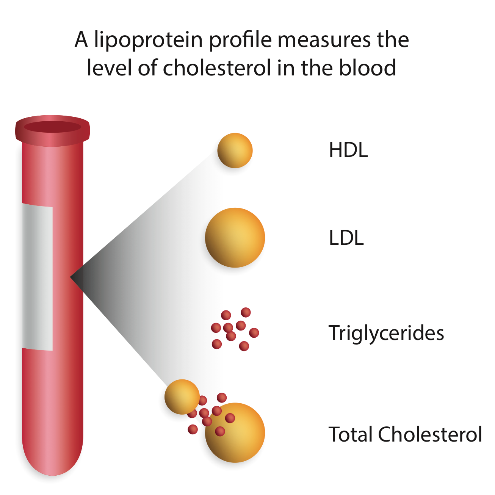 Lipoprotein particle