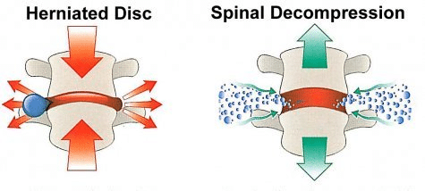 How decompression can help with herniated disc
