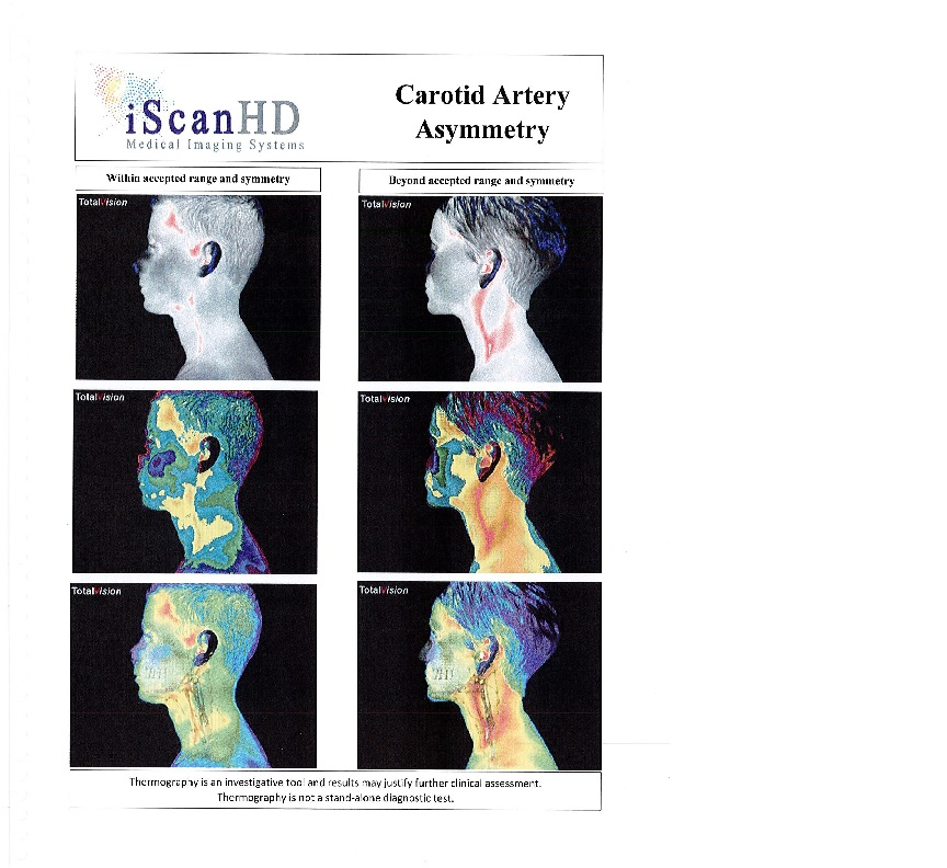 Thermography -- Carotid Artery Asymmetry