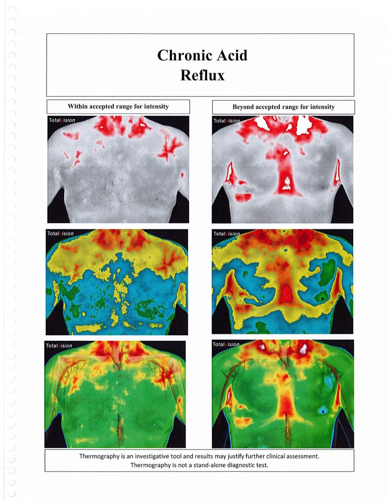Thermography -- Chronic Acid Reflux