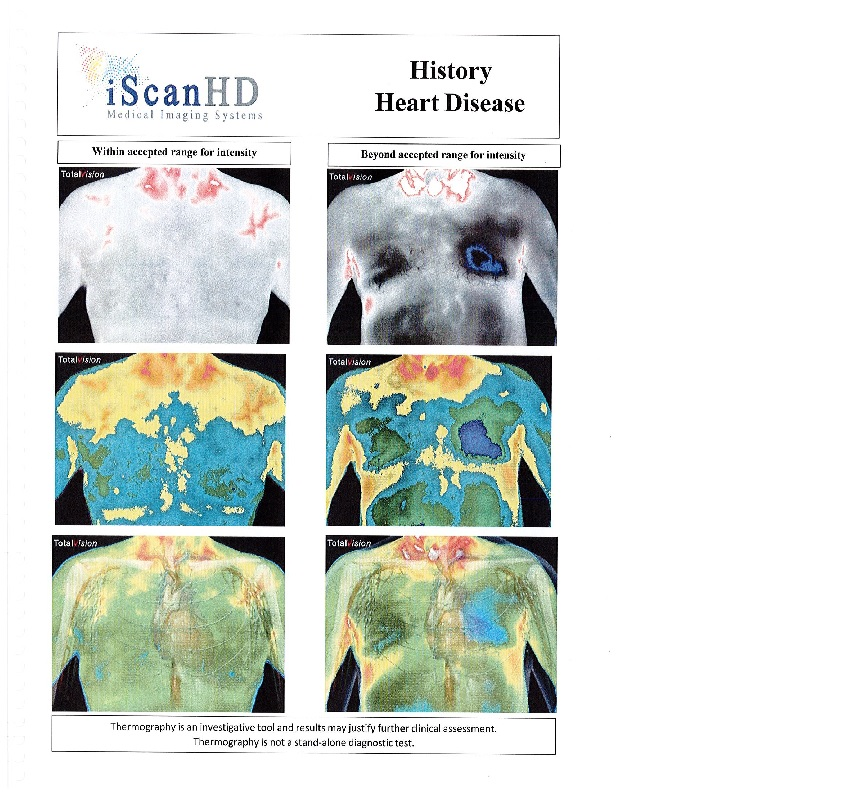 Thermography -- History Heart Disease