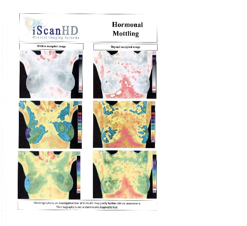 Thermography -- Hormonal Mottling