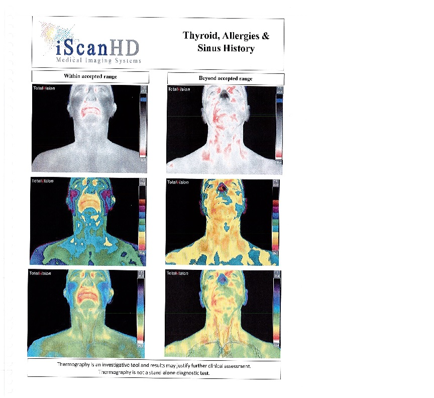 Thermography -- Thyroid, Allergies & Sinus History