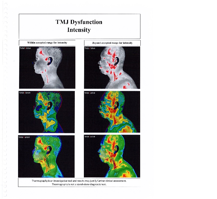 Thermography -- TMJ Dysfunction Intensity